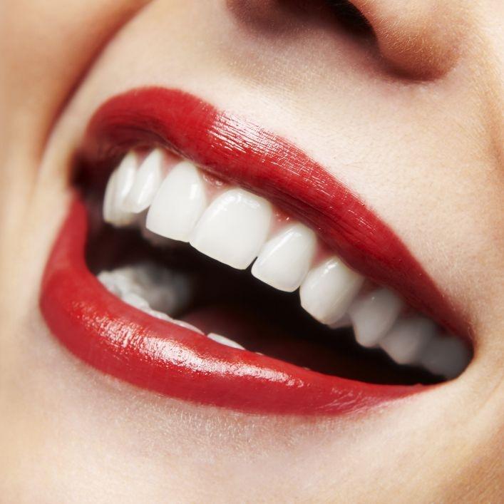Zuby ako perličky